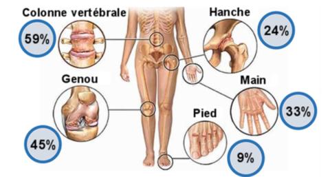 L'arthrose n'est pas une fatalité.
