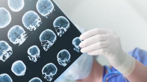 Enfin un diagnostic fiable, simple et peu coûteux face au fléau d'Alzheimer.
