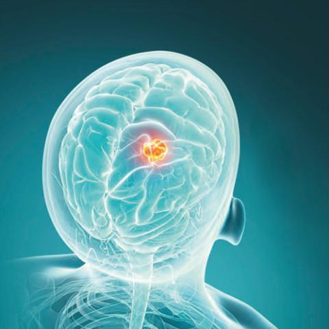 Leur ambition: guérir les tumeurs mortelles du cerveau.